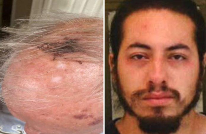 military veteran attacked